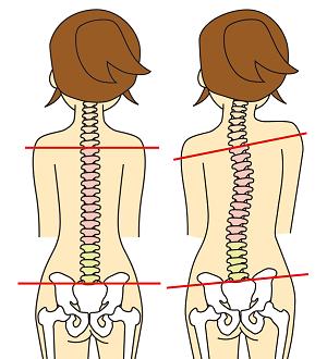 特別腰痛治療2