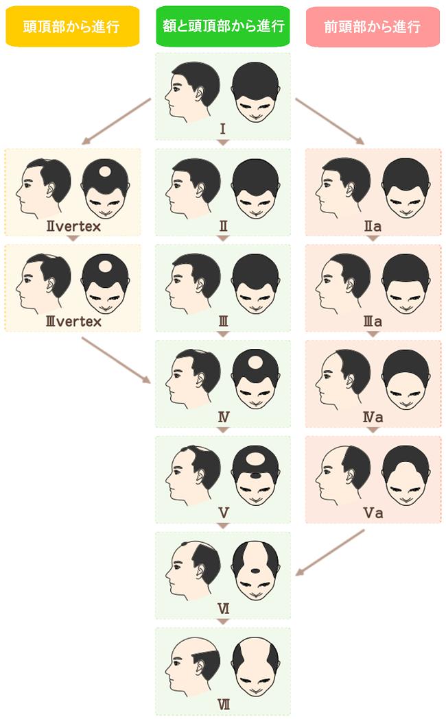 薄毛 頭皮レベルパターン画像